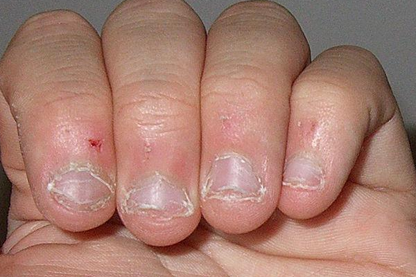 Заговоры если ребенок грызет ногти