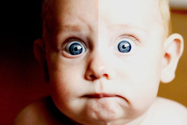 Бліда шкіра у дитини