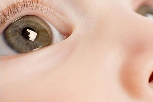 закисання очей у дітей