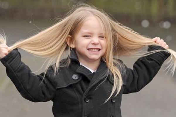Чому у дитини випадає волосся-2